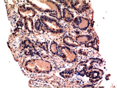 Fig.2. Immunohistochemical analysis of paraffin-embedded Human Prostate Tissue using Caspase-3 Mouse mAb diluted at 1:200.