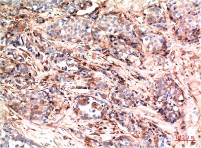Fig.2. Immunohistochemical analysis of paraffin-embedded Human Breast Carcinoma Tissue using Akt Mouse mAb diluted at 1:200.