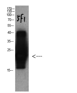 Fig.4. Western Blot analysis of Cystatin C protein using antibody diluted at 1:1000.