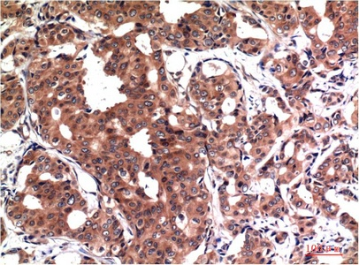 Fig.1. Immunohistochemical analysis of paraffin-embedded Human Breast Carcinoma Tissue using GSK3β Mouse mAb diluted at 1:200.