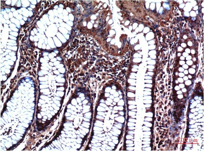 Fig.2. Immunohistochemical analysis of paraffin-embedded Human Stomach Carcinoma Tissue using GSK3β Mouse mAb diluted at 1:200.