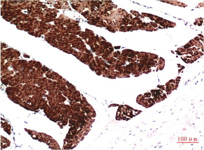Fig.1. Immunohistochemical analysis of paraffin-embedded Human Colon Carcinoma Tissue using Muscle Actin Mouse mAb diluted at 1:200.