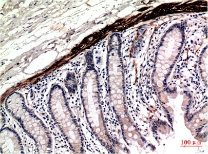 Fig.2. Immunohistochemical analysis of paraffin-embedded Human Colon Carcinoma Tissue using Muscle Actin Mouse mAb diluted at 1:200.
