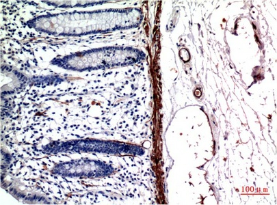 Fig.2. Immunohistochemical analysis of paraffin-embedded Human Colon CarcinomaTissue using Muscle Actin Mouse mAb diluted at 1:200.