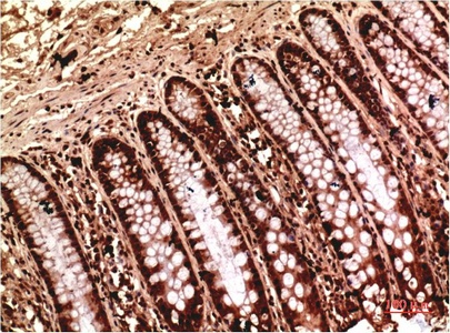 Fig.1. Immunohistochemical analysis of paraffin-embedded Human Colon Carcinoma Tissue using Gamma Tubulin Mouse mAb diluted at 1:200.