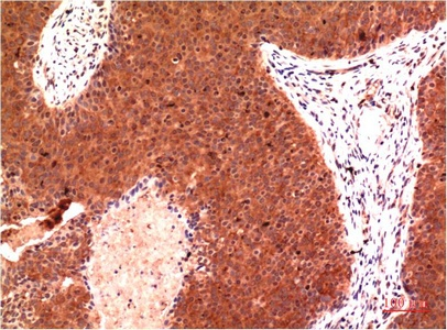 Fig.2. Immunohistochemical analysis of paraffin-embedded Human Breast Carcinoma Tissue using Gamma Tubulin Mouse mAb diluted at 1:200.