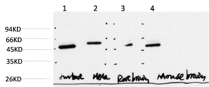 Fig.3. Western Blot analysis of paraffin-embedded JurkatHelaMouse-brainRat-brain using Gamma Tubulin Mouse mAb diluted at 1:1000.