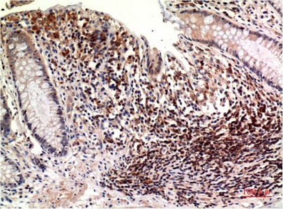 Fig.1. Immunohistochemical analysis of paraffin-embedded Human Colon Carcinoma Tissue using Epsilon Tubulin Mouse mAb diluted at 1:200.