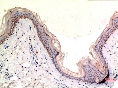 Fig.2. Immunohistochemical analysis of paraffin-embedded Human Skin Tissue using MLKL Mouse mAb diluted at 1:200.