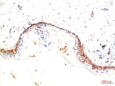 Fig.2. Immunohistochemical analysis of paraffin-embedded Human Skin Tissue using PDGFR a Mouse mAb diluted at 1:200.