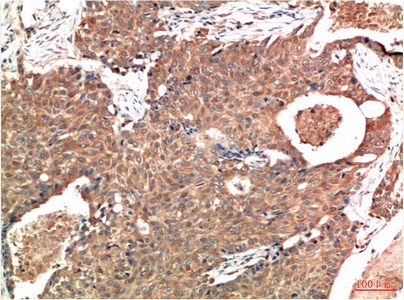 Fig.2. Immunohistochemical analysis of paraffin-embedded Human Breast Carcinoma Tissue using ATM Mouse mAb diluted at 1:200.