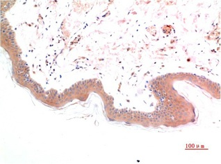 Fig.1. Immunohistochemical analysis of paraffin-embedded Human Skin Tissue using Phospho-Smad3 (S425) Mouse mAb diluted at 1:200.