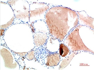 Fig.2. Immunohistochemical analysis of paraffin-embedded Human Thyroid Tissue using TTR Mouse mAb diluted at 1:200.