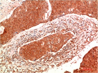 Fig.1. Immunohistochemical analysis of paraffin-embedded Human Breast Carcinoma Tissue using JAK2 Mouse mAb diluted at 1:200.