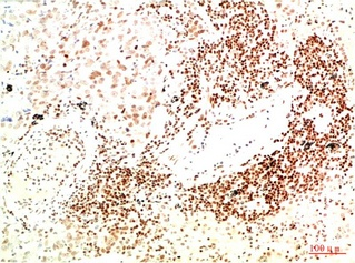 Fig.2. Immunohistochemical analysis of paraffin-embedded Human Lung Carcinoma Tissue using JAK2 Mouse mAb diluted at 1:200.