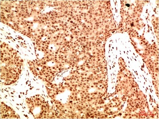 Fig.1. Immunohistochemical analysis of paraffin-embedded Human Breast Carcinoma Tissue using Acetyl NF kB P65 (K314/K315) Mouse mAb diluted at 1:200.