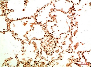 Fig.2. Immunohistochemical analysis of paraffin-embedded Human Lung Carcinoma Tissue using Acetyl NF kB P65 (K314/K315) Mouse mAb diluted at 1:200.