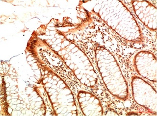 Fig.3. Immunohistochemical analysis of paraffin-embedded Human Colon Carcinoma Tissue using Acetyl P53 (K382) Mouse mAb diluted at 1:200.