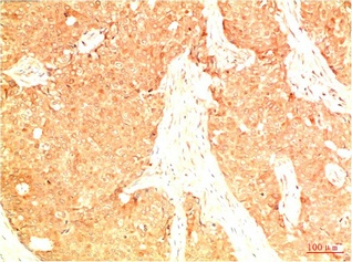 Fig.1. Immunohistochemical analysis of paraffin-embedded Human Breast Carcinoma Tissue using Acetyl P53 (K382) Mouse mAb diluted at 1:200.