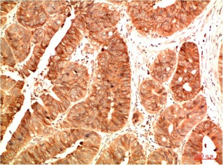Fig.2. Immunohistochemical analysis of paraffin-embedded Human Colon Carcinoma Tissue using Acetyl P53 (K382) Mouse mAb diluted at 1:200.