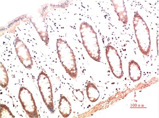 Fig.1. Immunohistochemical analysis of paraffin-embedded Human Colon Carcinoma Tissue using Collagen I Mouse mAb diluted at 1:200.