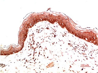 Fig.2. Immunohistochemical analysis of paraffin-embedded Human Skin Carcinoma Tissue using Collagen I Mouse mAb diluted at 1:200.