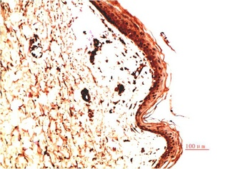 Fig.2. Immunohistochemical analysis of paraffin-embedded Human Skin Carcinoma Tissue using Collagen IV Mouse mAb diluted at 1:200.