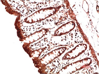 Fig.2. Immunohistochemical analysis of paraffin-embedded Human Colon Carcinoma Tissue using Collagen II Mouse mAb diluted at 1:200.