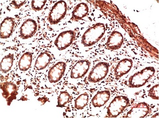 Fig.3. Immunohistochemical analysis of paraffin-embedded Human Colon Carcinoma Tissue using Collagen II Mouse mAb diluted at 1:200.