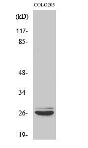 Fig. Western Blot analysis of various cells using Caspase-14 Polyclonal Antibody.