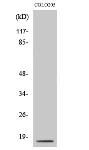 Fig. Western Blot analysis of various cells using Cleaved-Caspase-3 p17 (D175) Polyclonal Antibody.