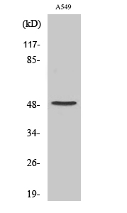 Fig. Western Blot analysis of various cells using Cleaved-Factor X/ Factor X LC (A41) Polyclonal Antibody.