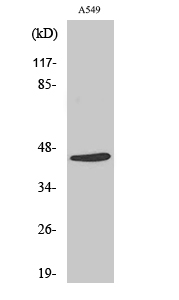 Fig. Western Blot analysis of various cells using Cleaved-MASP-1 HC (R448) Polyclonal Antibody.