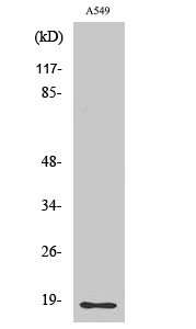 Fig. Western Blot analysis of various cells using Cleaved-MMP-1 22k (F100) Polyclonal Antibody.