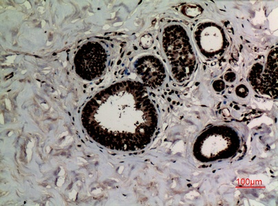 Fig.2. Immunohistochemical analysis of paraffin-embedded human-breast-cancer, antibody was diluted at 1:100.
