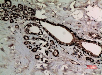 Fig.3. Immunohistochemical analysis of paraffin-embedded human-breast-cancer, antibody was diluted at 1:100.