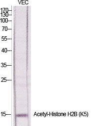 Fig.1. Western Blot analysis of various cells using Acetyl-Histone H2b (K5) Polyclonal Antibody diluted at 1:1000. Secondary antibody (catalog#: A21020) was diluted at 1:20000.