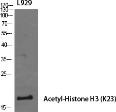 Fig.1. Western Blot analysis of various cells using Acetyl-Histone H3 (K23) Polyclonal Antibody diluted at 1:1000. Secondary antibody (catalog#: A21020) was diluted at 1:20000.