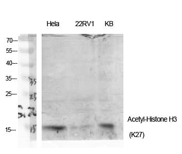 Fig.1. Western Blot analysis of various cells using Acetyl-Histone H3 (K27) Polyclonal Antibody diluted at 1:2000. Secondary antibody (catalog#: A21020) was diluted at 1:20000.