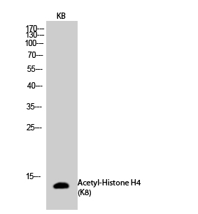 Fig.2. Western Blot analysis of KB cells using Acetyl-Histone H4 (K8) Polyclonal Antibody diluted at 1:500. Secondary antibody (catalog#: A21020) was diluted at 1:20000.