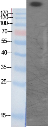 Fig. Western Blot analysis of various cells using Acetyl-CBP (K1535) Polyclonal Antibody diluted at 1:1000. Secondary Antibody  was diluted at 1:20000.