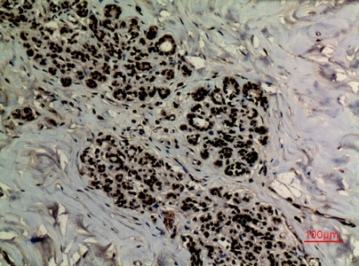 Fig.4. Immunohistochemical analysis of paraffin-embedded human-breast, antibody was diluted at 1:100.