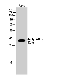 Fig.2. Western Blot analysis of A549 cells using Acetyl-ATF-5 (K29) Polyclonal Antibody. Secondary Antibody  was diluted at 1:20000.