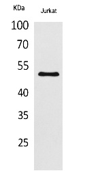 Fig.1. Western Blot analysis of Jurkat cells using Acetyl-HNF-3α/β/γ (K264/253/211) Polyclonal Antibody. Secondary Antibody was diluted at 1:2000O.