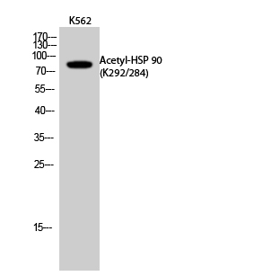 Fig.2. Western Blot analysis of K562 cells using Acetyl-HSP 90 (K292/284) Polyclonal Antibody. Secondary Antibody was diluted at 1:20000.
