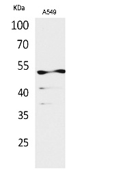 Fig.1. Western Blot analysis of A549 cells using Acetyl-Cytokeratin 8 (K483) Polyclonal Antibody. Secondary Antibody was diluted at 1:20000.