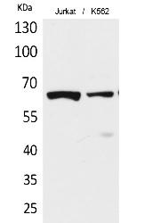 Fig.1. Western Blot analysis of Jurkat, K562 cells using Acetyl-NFκB-p65 (K218) Polyclonal Antibody. Antibody was diluted at 1:1000. Secondary Antibody was diluted at 1:20000.