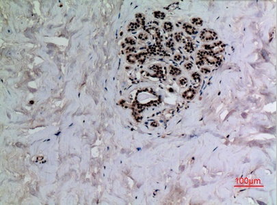 Fig.3. Immunohistochemical analysis of paraffin-embedded human-breast, antibody was diluted at 1:100.