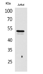 Fig.1. Western Blot analysis of Jurkat cells using Acetyl-Tubulin α (K40) Polyclonal Antibody. Secondary Antibody was diluted at 1:20000.