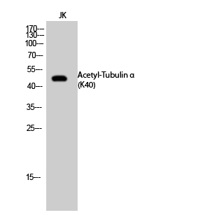 Fig.2. Western Blot analysis of JK cells using Acetyl-Tubulin α (K40) Polyclonal Antibody. Secondary Antibody  was diluted at 1:20000.